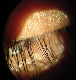 A treated eyelash.