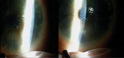 Figure 1. Slit lamp photographs showing significant corneal map-dot-fingerprint dystrophy affecting the visual axis.