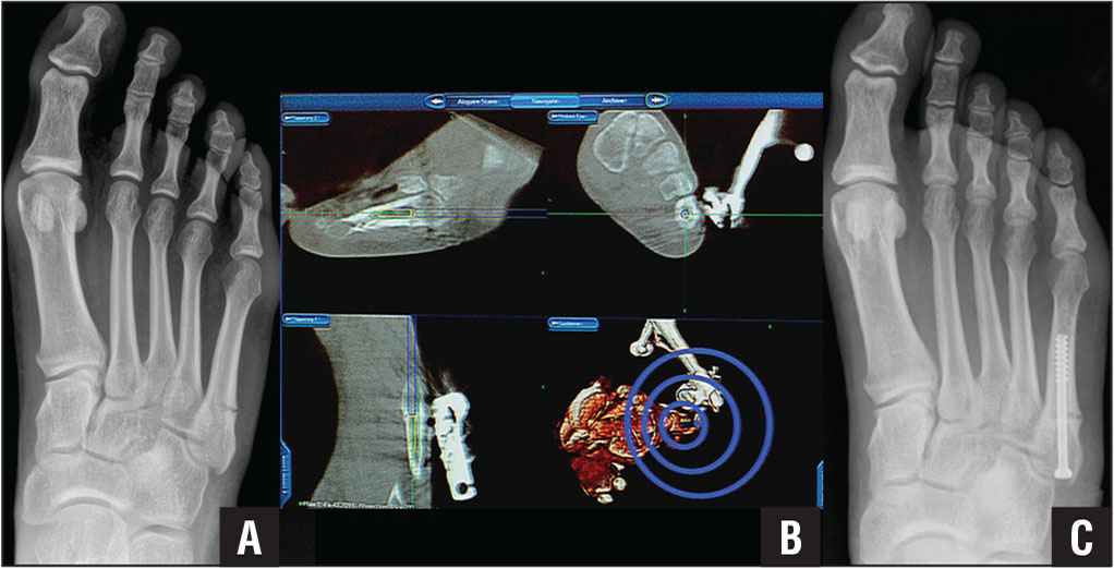 Percutaneous fixation under 3-dimensional computed tomography–guided navigation of a 2-month-old delayed union of a fracture of the base of the fifth metatarsal. Anteroposterior radiograph of the right foot showing delayed union of the fracture (A). Navigation screenshot showing the target trajectory and screw placement across the fracture site (B). Postoperative anteroposterior radiograph showing satisfactory fixation and healing of the fracture (C).