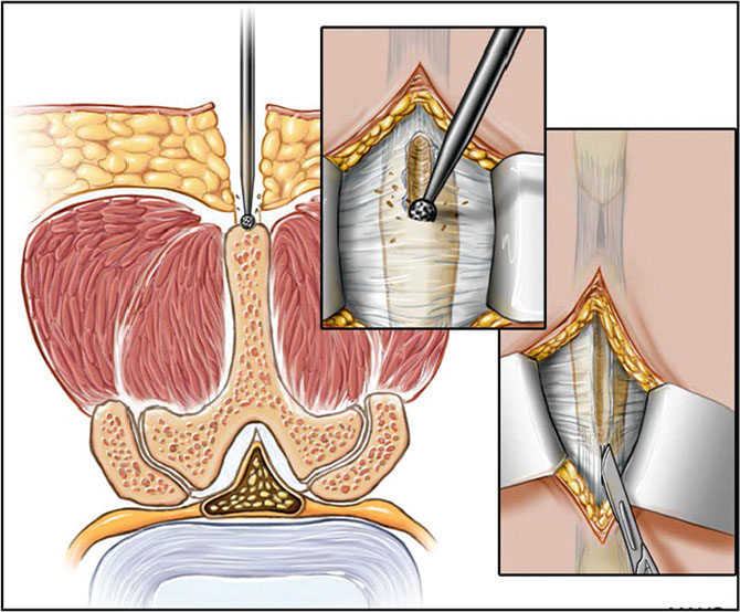 Splitting of the spinous process using a burr and sectioning of the supra and interspinous ligaments. (Used with permission of the Mayo Foundation for Medical Education and Research, all rights reserved.)