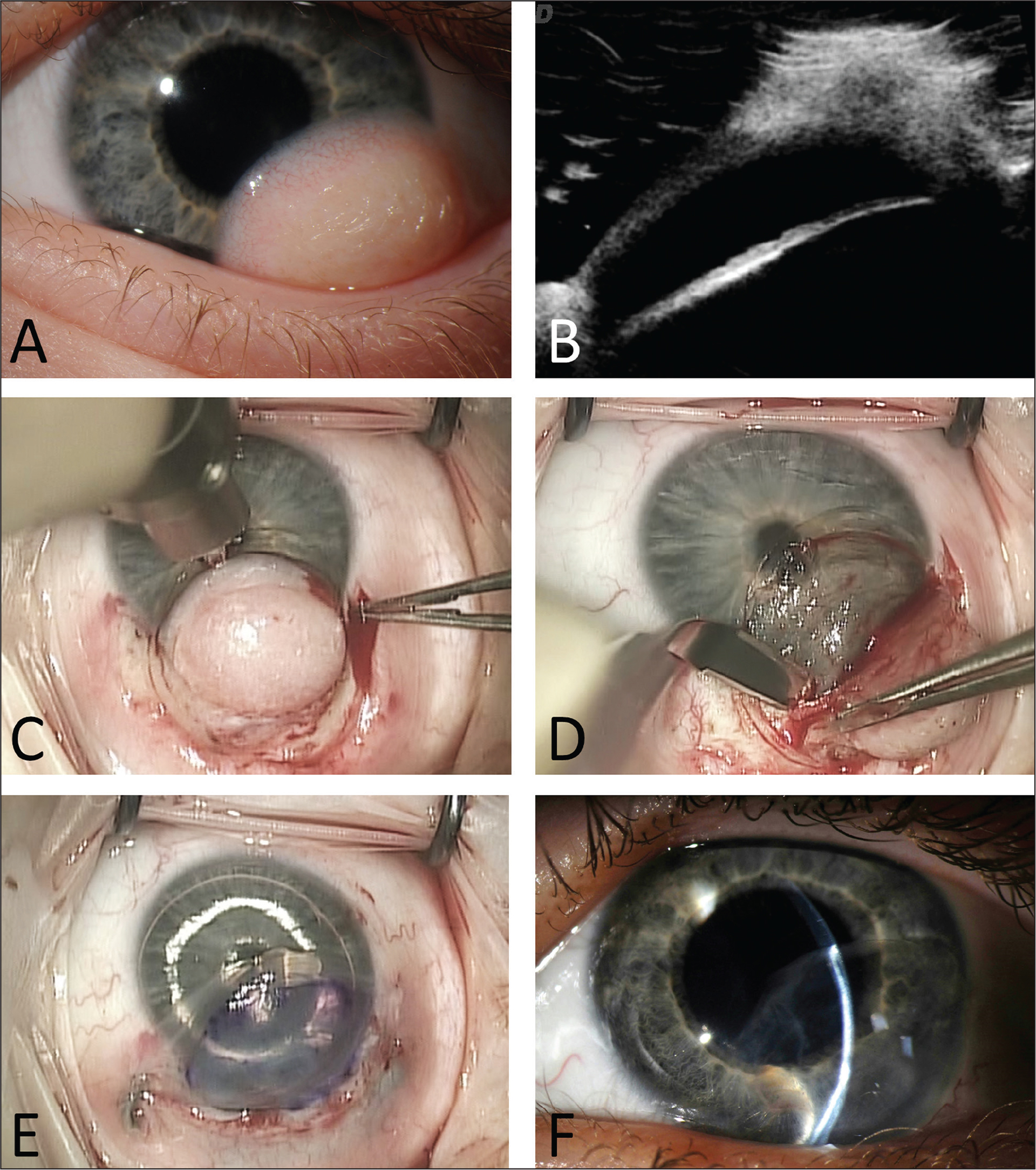 (A) Inferotemporal growth on the left eye before surgery. (B) Ultrasound biomicroscopy showing extension of lesion into the corneal stroma. (C) A guarded diamond blade was used to mark the corneal border of the dermoid and enable start of dissection. (D) Lamellar keratectomy to remove the entire dermoid. (E) Graft after attachment with fibrin glue. (F) Slit-lamp examination of the graft 10 weeks after the surgery shows the graft integrating well, with slight haze and no edema.