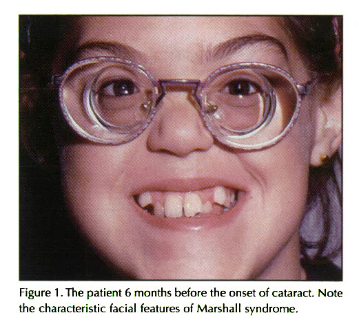 marshall syndrome Gallery