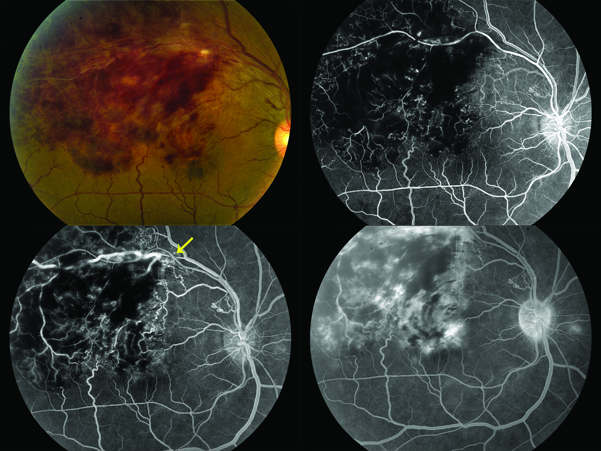 Branch retinal vein occlusion in a 41-year-old man. Note delayed venous filling in superior arcade (top right). Yellow arrow (bottom left) pointing to site of occlusion at an arterial-venous intersection. Late leakage within macula (bottom right).
