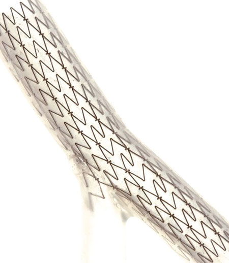 Nitinol Stent Deployment of Deployed Stentys Stents