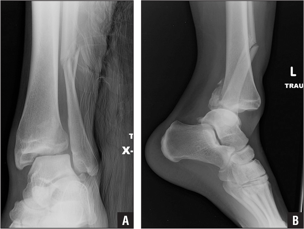 Use of a Pin Distractor as an Aid for Fixation of ... Ankle Pronation Surgery