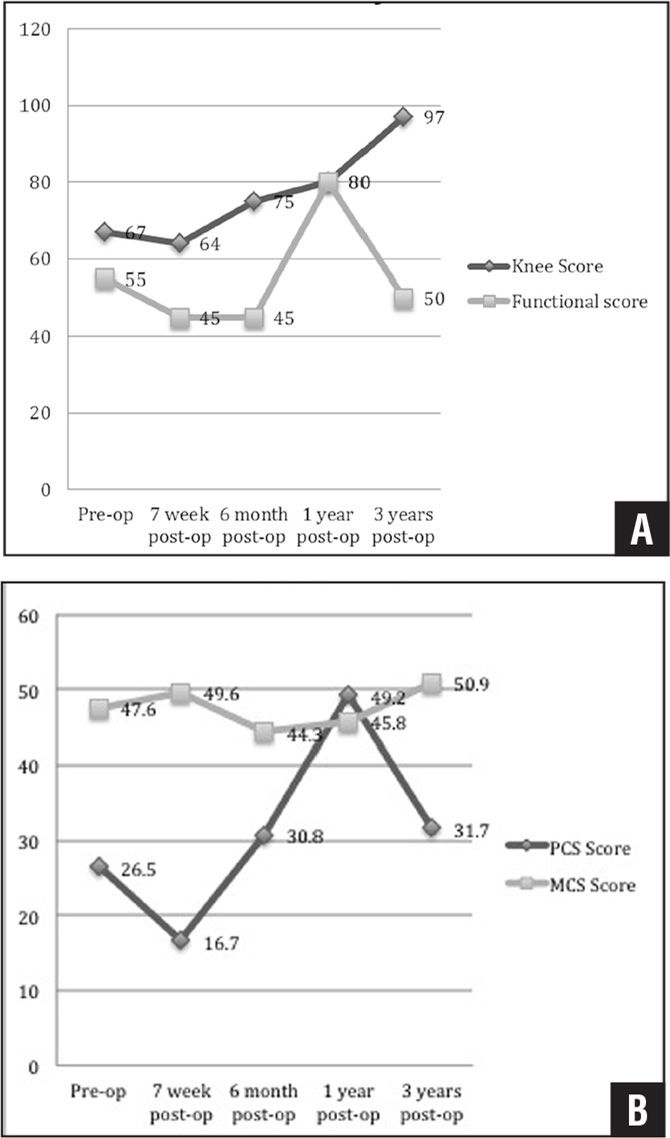 Knee Society Scores across time periods (A). The 12-Item Short Form Health Survey scores across time periods (B). Abbreviations: MCS, mental component score; PCS, physical component score.