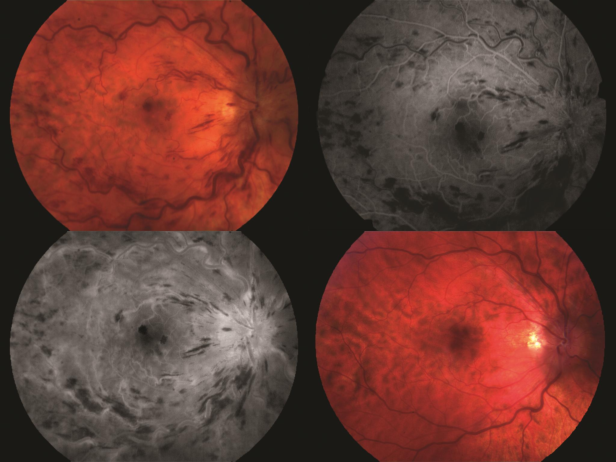 Central retinal vein occlusion in a 31-year-old man with 20/60 visual acuity in the right eye. There is tortuosity and significant disc edema but only moderate intraretinal hemorrhaging. Significant venous delay at 43 seconds into fluorescein angiography (top right). Late image (bottom left) showing staining of the disc and veins. There is also some mild leakage within the macula. The same eye 17 months later (bottom right) with resolution of hemorrhaging but the disc still appears mildly edematous. Visual acuity was 20/25.
