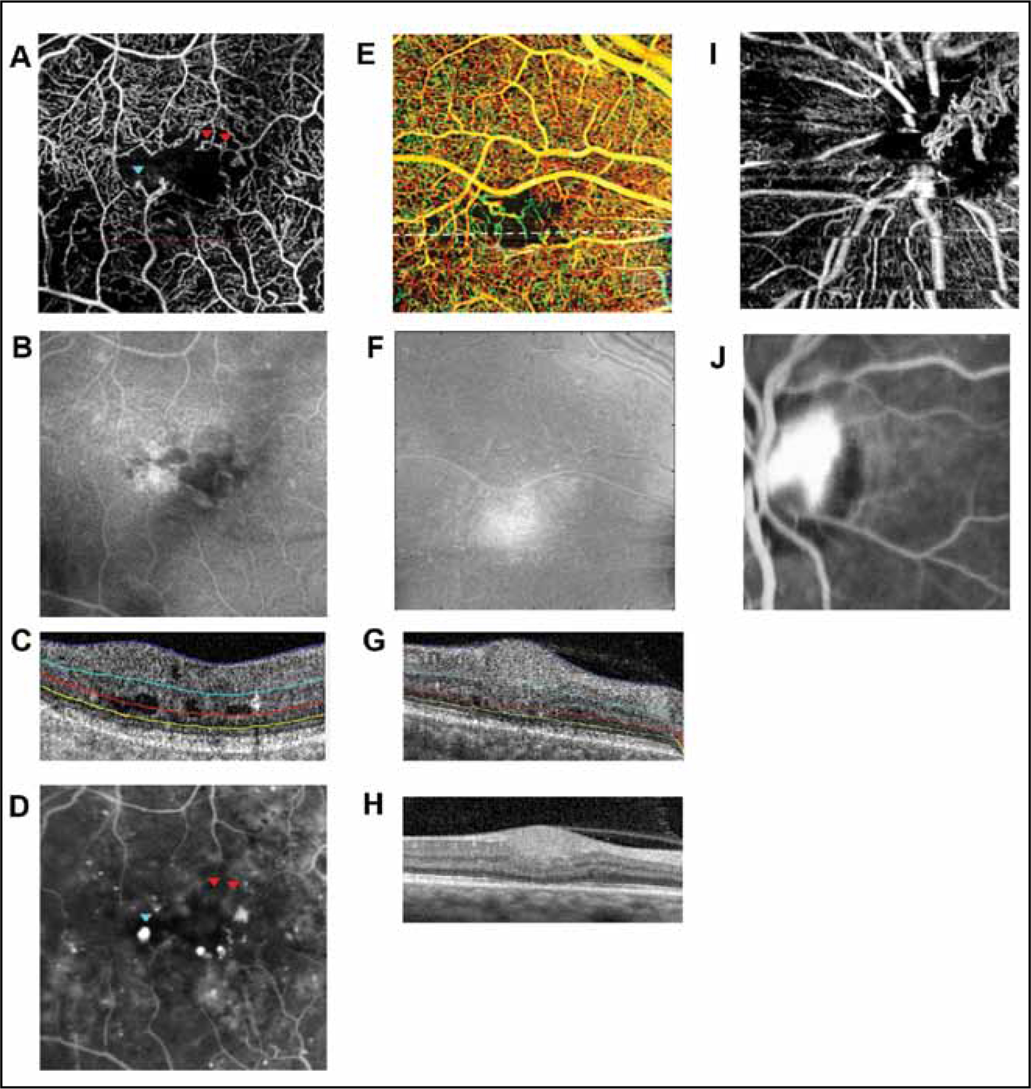 Swept-source optical coherence tomography angiography (SS-OCTA) scans of diabetic subjects exemplifying typical findings seen in diabetic retinopathy. (A) Inner-retinal SS-OCTA of a diabetic subject with impaired vascular perfusion, intraretinal vascular looping (red arrowheads), and a microaneurysm (cyan arrowhead). (B) En face intensity SS-OCT scan of the inner retina corresponding to the SS-OCTA in above panel demonstrates some artifactual changes in reflectivity; however, the SS-OCTA findings are largely unchanged. (C) SS-OCT B-scan through red dotted line in (A) with segmentation of the inner retinal layer between the blue and cyan lines. (D) Fluorescein angiogram of the same subject and area seen in (A) with arrowheads from (A) overlaid on the image. (E) A cotton-wool spot is shown as an area of impaired vascular perfusion on a depth-encoded SS-OCTA and as a bulge in the nerve fiber layer on spectral-domain OCT (G). (F) En face intensity SS-OCT scan of the inner retina corresponding to the SS-OCTA in above panel demonstrates some artifactual changes in reflectivity; however, the SS-OCTA findings are largely unchanged. (H) SS-OCT B-scan through white dotted line in (E). (I) Inner-retinal section of a subject with neovascularization of the disc showing the neovascularization projecting out of the center of the disc. (J) Corresponding late phase fluorescein angiogram of the neovascularization.