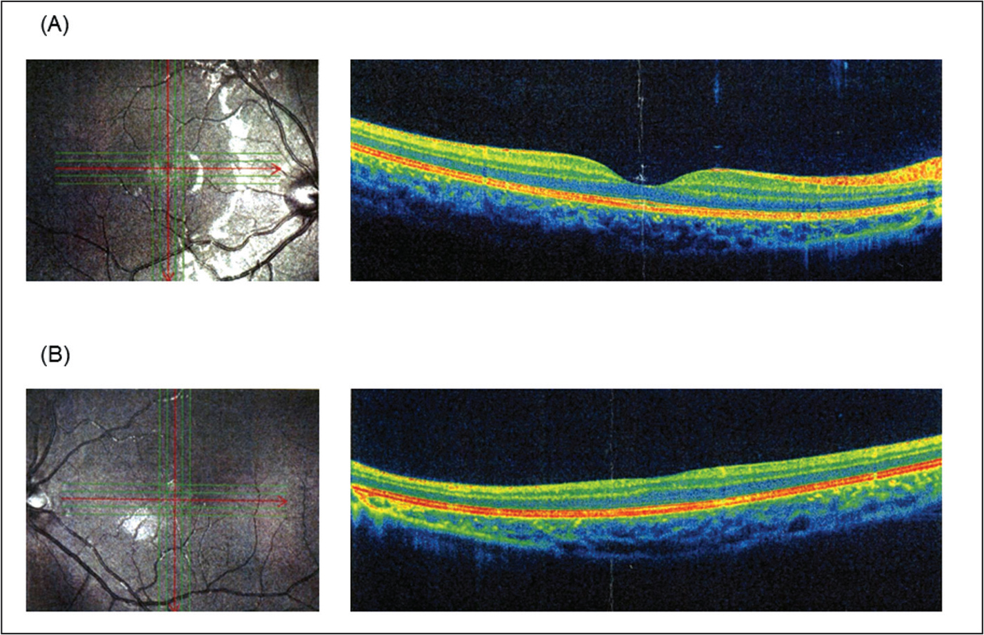 Spectral domain optical coherence tomography imaging. (A) The right eye appears normal. (B) The left eye shows foveal hypoplasia.