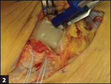 Appropriate drilling trajectory for suture anchor placement at the ATFL talar attachment site