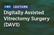 Digitally Assisted Vitrectomy Surgery (DAVS): The Next Frontier