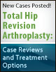 Total hip revision arthroplasty