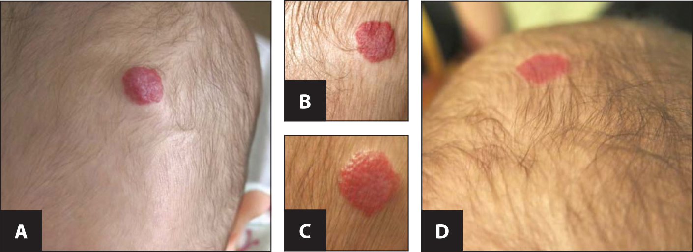 The photographs show the regression of the raised scalp focal hemangioma from age 4 months (A) at the initiation of treatment with propanolol (2 mg/kg/day); age 5 months (B); age 6.5 months (C); and age 9 months (D). The hemangioma sequentially becomes much less bright red, and totally flattened after 5 months of treatment.All images courtesy of Lindsay Blackmon, MD