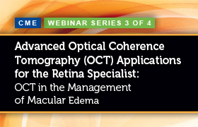OCT in the Management of Macular Edema