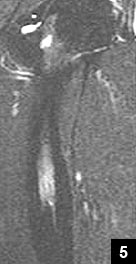 Figure 5: STIR coronal MRI showing significant interval decrease in the amount of subperiosteal edema