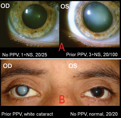 vitrectomy and gas bubble in the left eye to repair a retinalVitrectomy Retinal Detachment